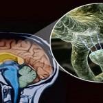 От чего страдает наш мозг